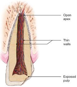 illustration of injured tooth - traumatic dental injuries